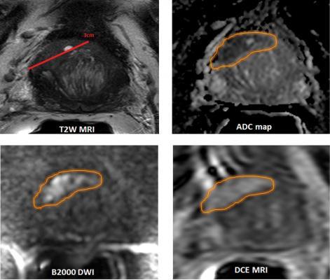prostate cancer segmentation
