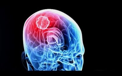 Killing Cancer – New Brain Cancer Treatment Targets Tumors