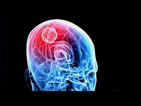 Brain Tumor-Brain Cancer-Causes and Symptoms