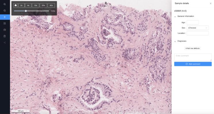 PathoPlatform CancerCenter