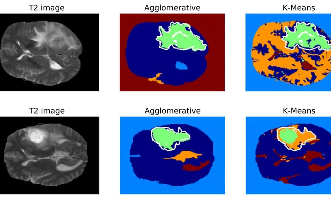 MRI Analysis – case study